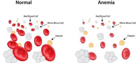 differenza sangue sano e anemico