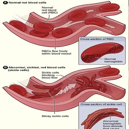 anemiafalciforme
