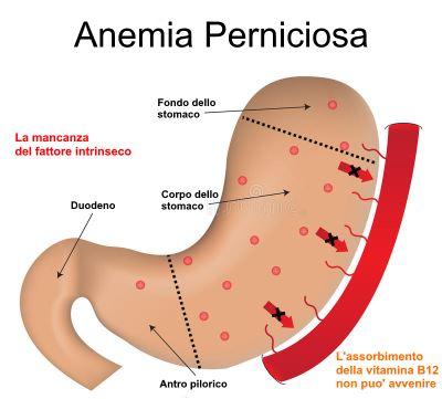 che cosa e anemia perniciosa