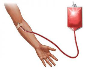 cura dell'anemia mediterranea con trasfusioni